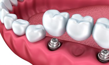 Dental Implants Chattanooga